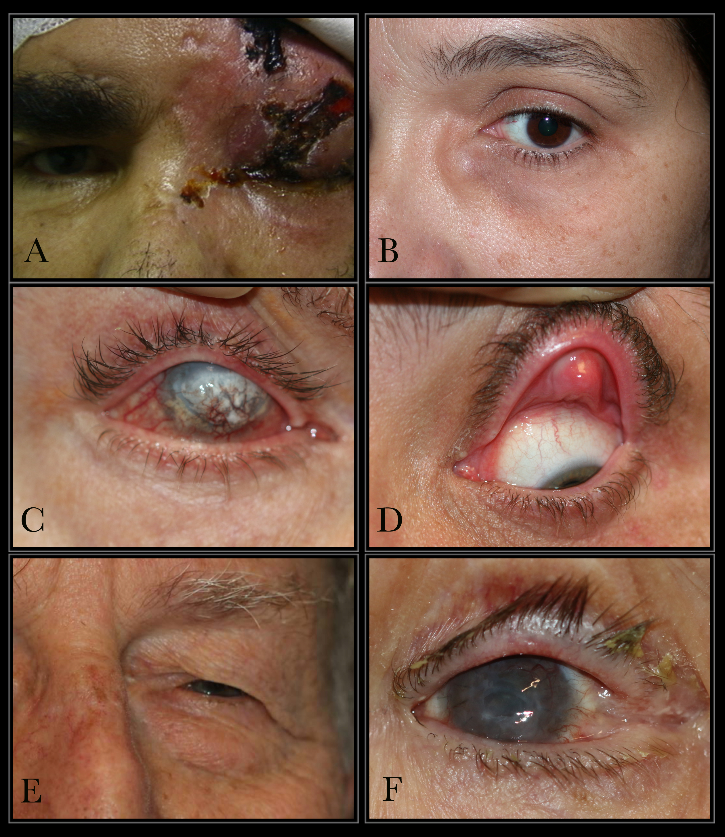 Conditions that can cause epiphora: A. Herpes Zoster with keratitis B. Lacrimal mucocele C. Corneal calcific keratopathy D. Floppy eyelid syndrome E. Kissing puncta syndrome F. Pemphigoid disease with trichiasis and obliteration of puncta