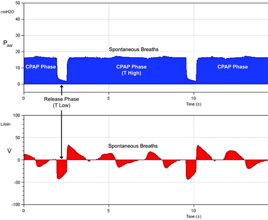 Figure 1. APRV Pressure cycles with superimposed Spontaneous Breathing
