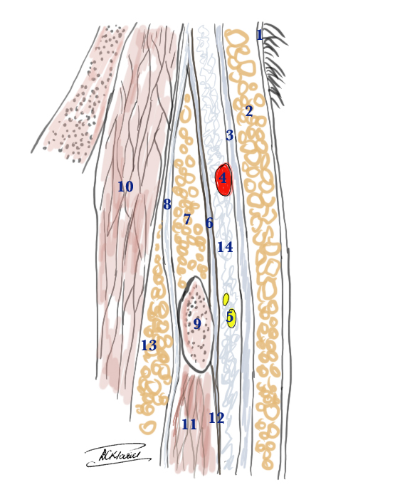 Superficial Temporal Artery and the Temporal branch of the Facial Nerve: anatomical cross section to show the relative layers above the zygomatic arch