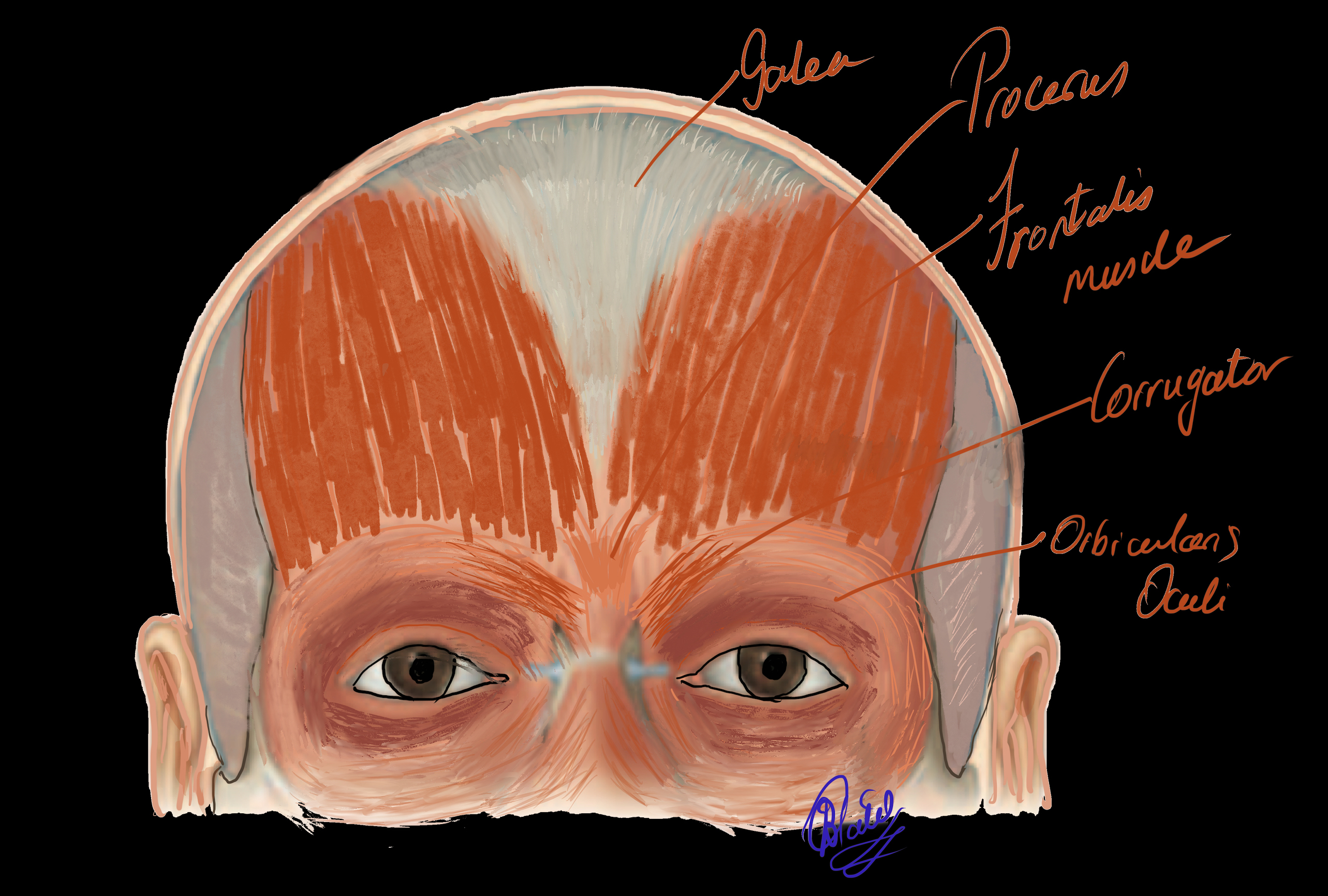 The Fronatlis Muscle which is the only elevator of the brow. The procerus, corrugator and orbicularis oculi muscles are the depressors