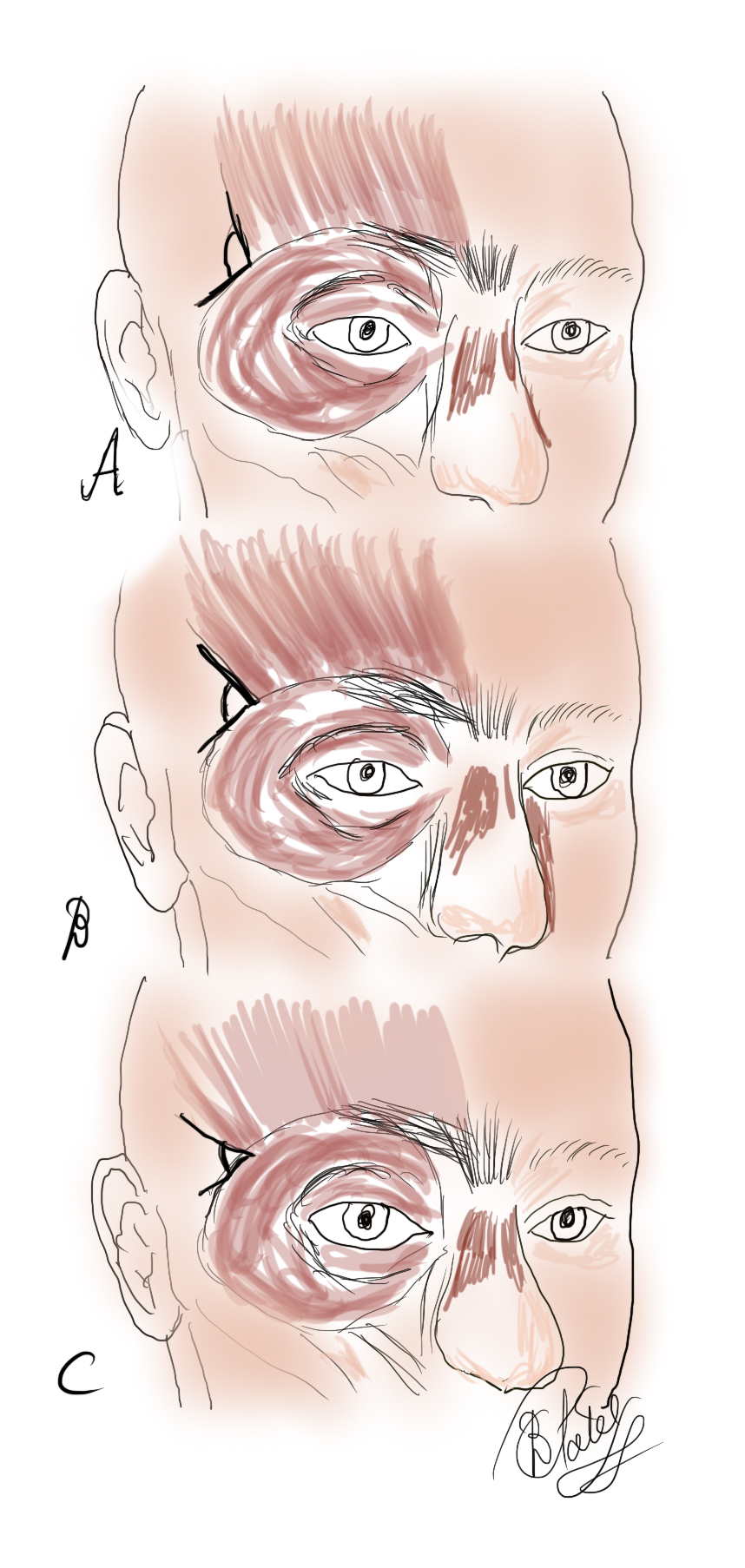The Frontalis Muscle: The angle of insertion of the frontalis muscle laterally as measured against the orbital orbicularis oculi varies: