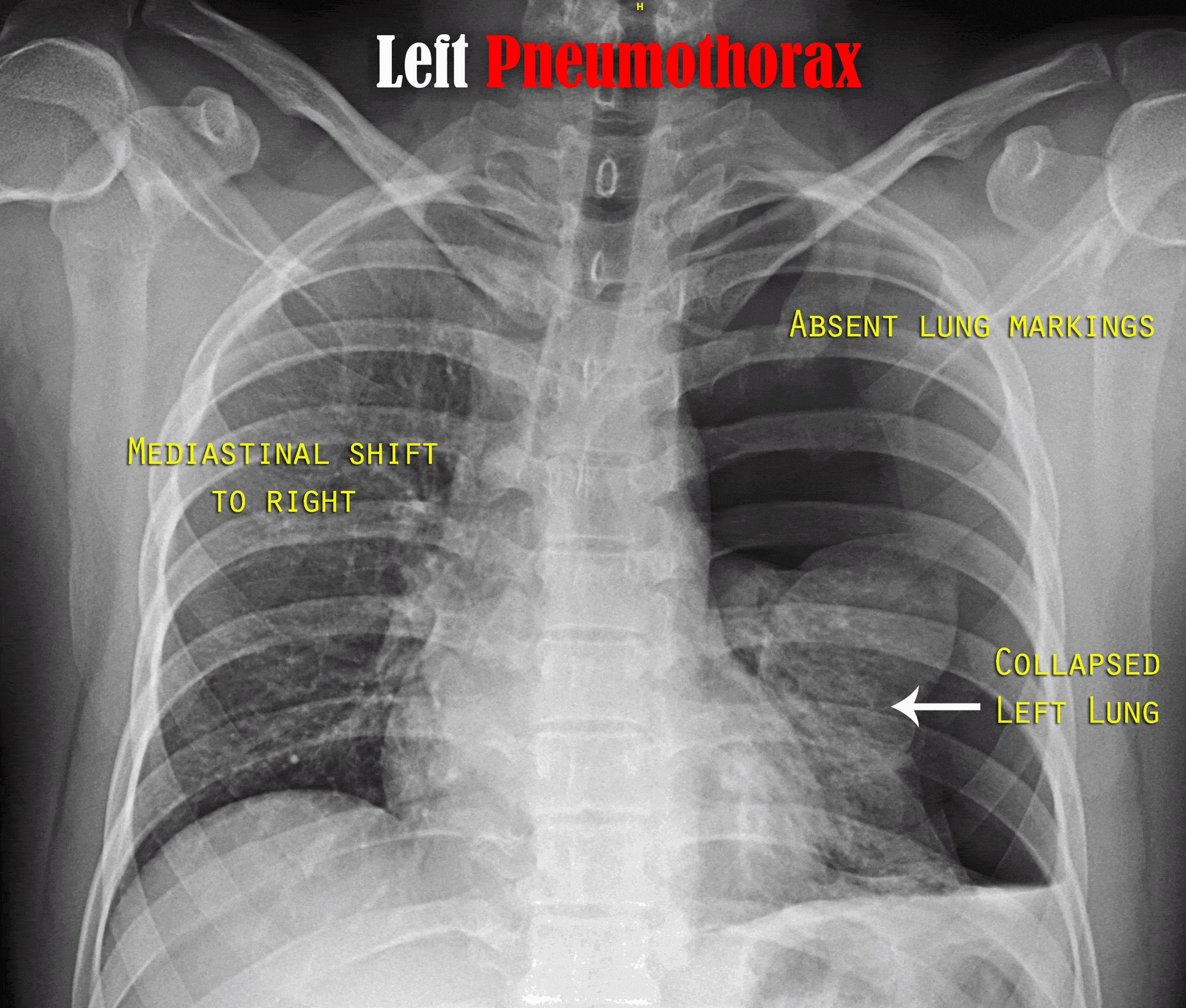 left sided tension pneumothorax