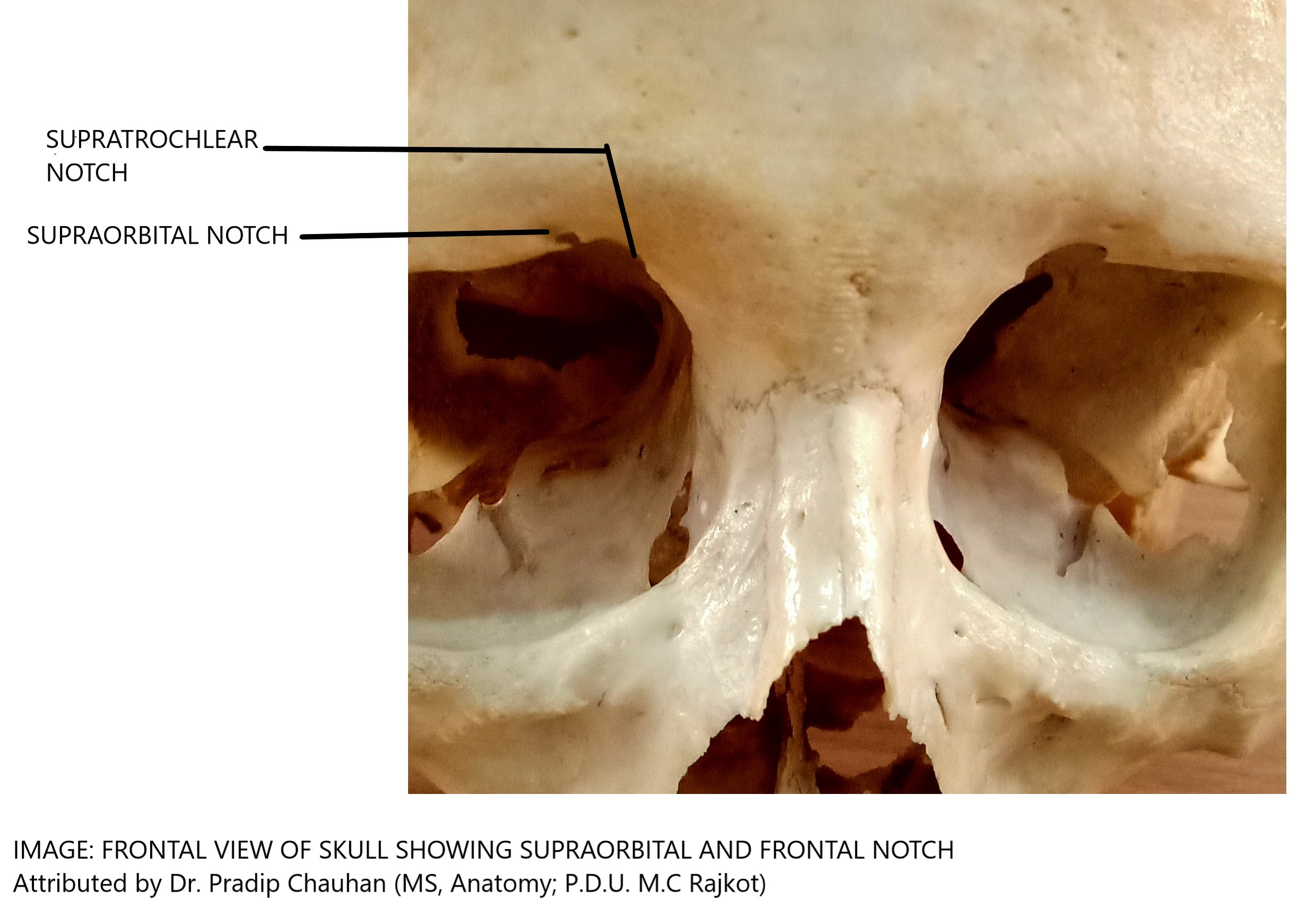 FRONTAL VIEW OF THE SKULL SHOWING SUPRATROCHLEAR AND SUPRAORBITAL NOTCH