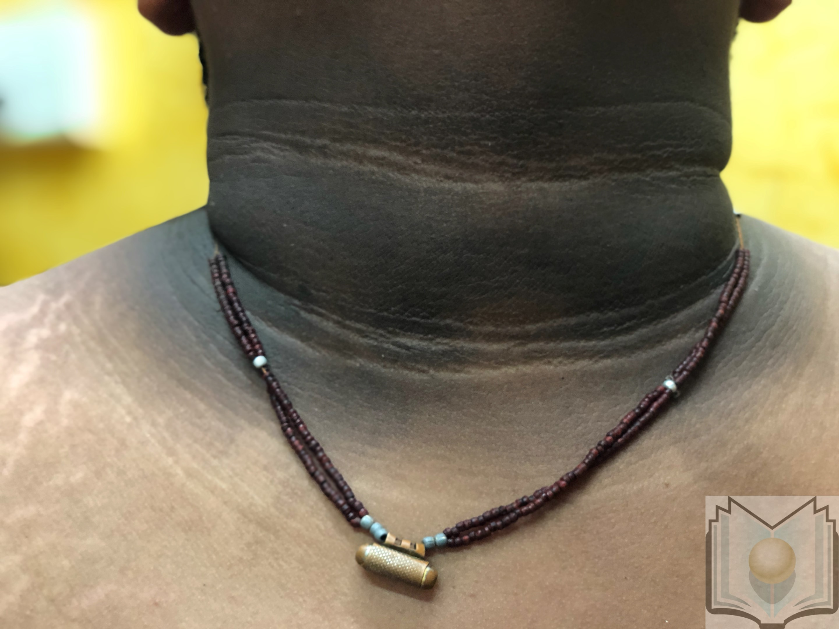 Acanthosis nigricans SV1 A