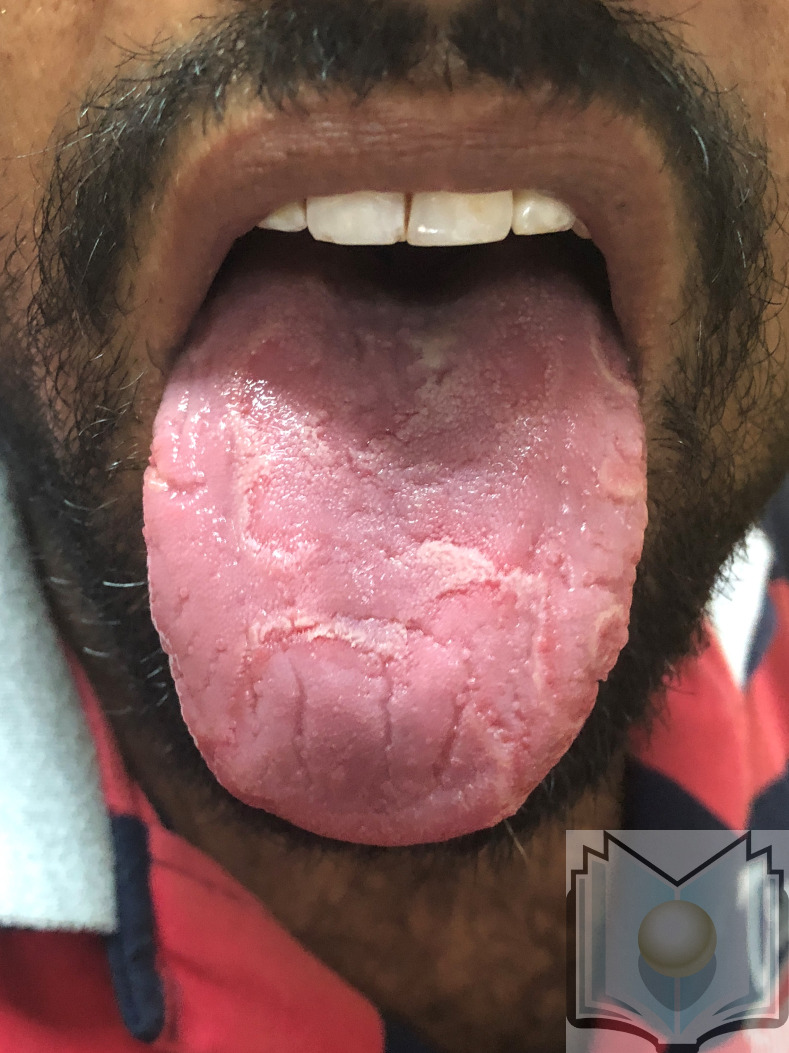 Geographic tongue 02