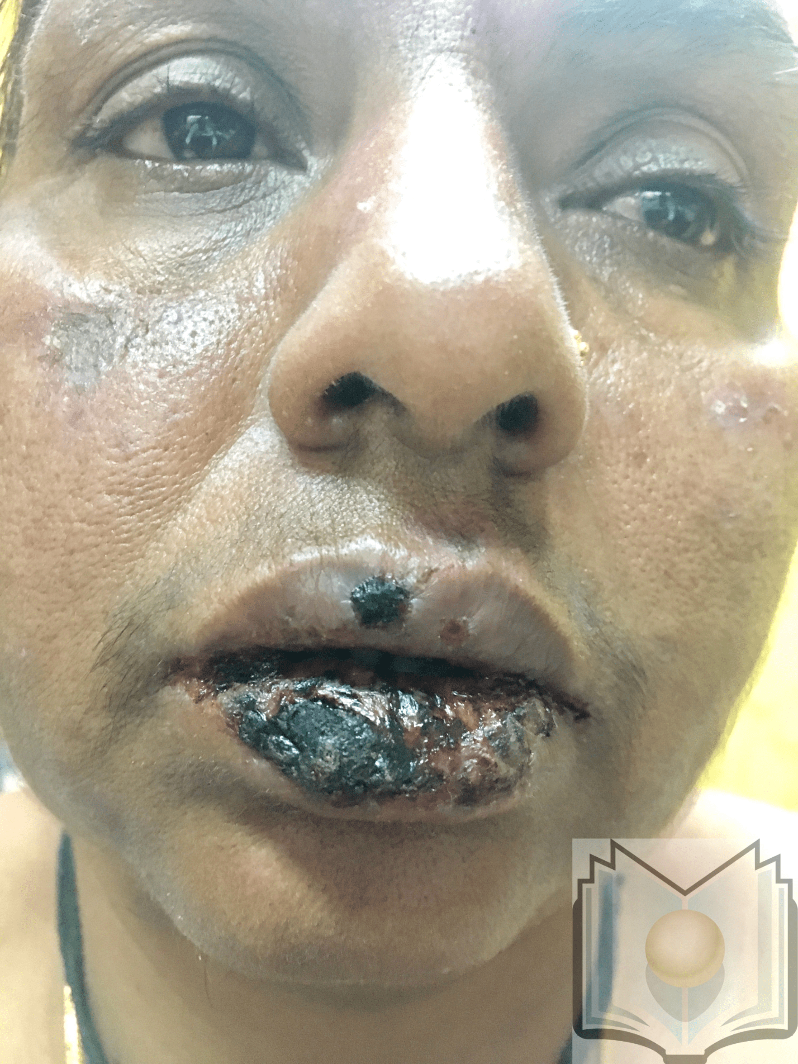 Oral Lesions of Erythema Multiformes