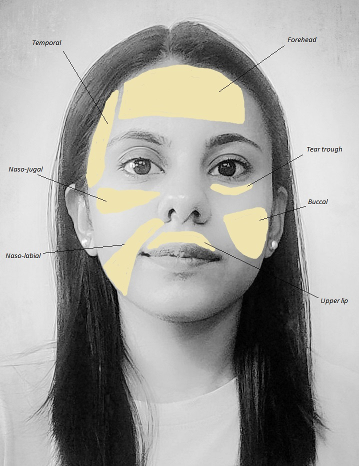 Most common areas of face used for fat grafting