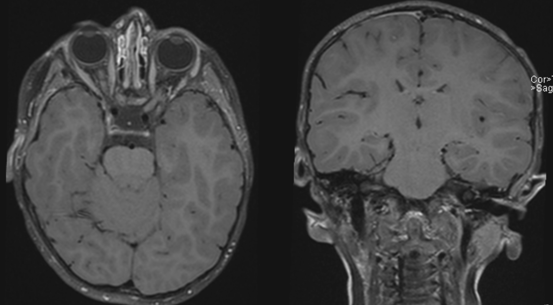 Axial and coronal post-contrast black blood images of the brain.
