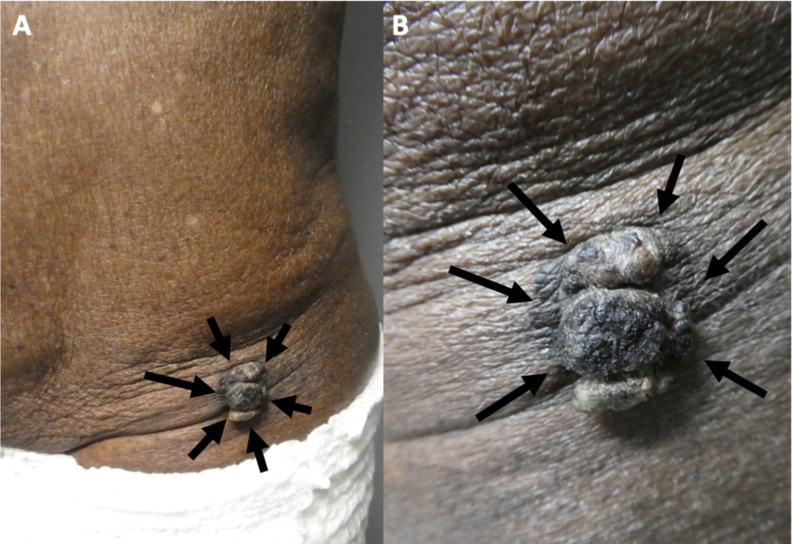 Figure 4. Melanoacanthoma on the left lower abdomen of an 85-year-old man.  Distant (A) and closer (B) views of a melanoacanthoma (black arrows) presenting as a large 3 x 2.5 cm lobulated, exophytic, black nodule with hyperpigmentation of the surrounding skin on the left lower abdomen.