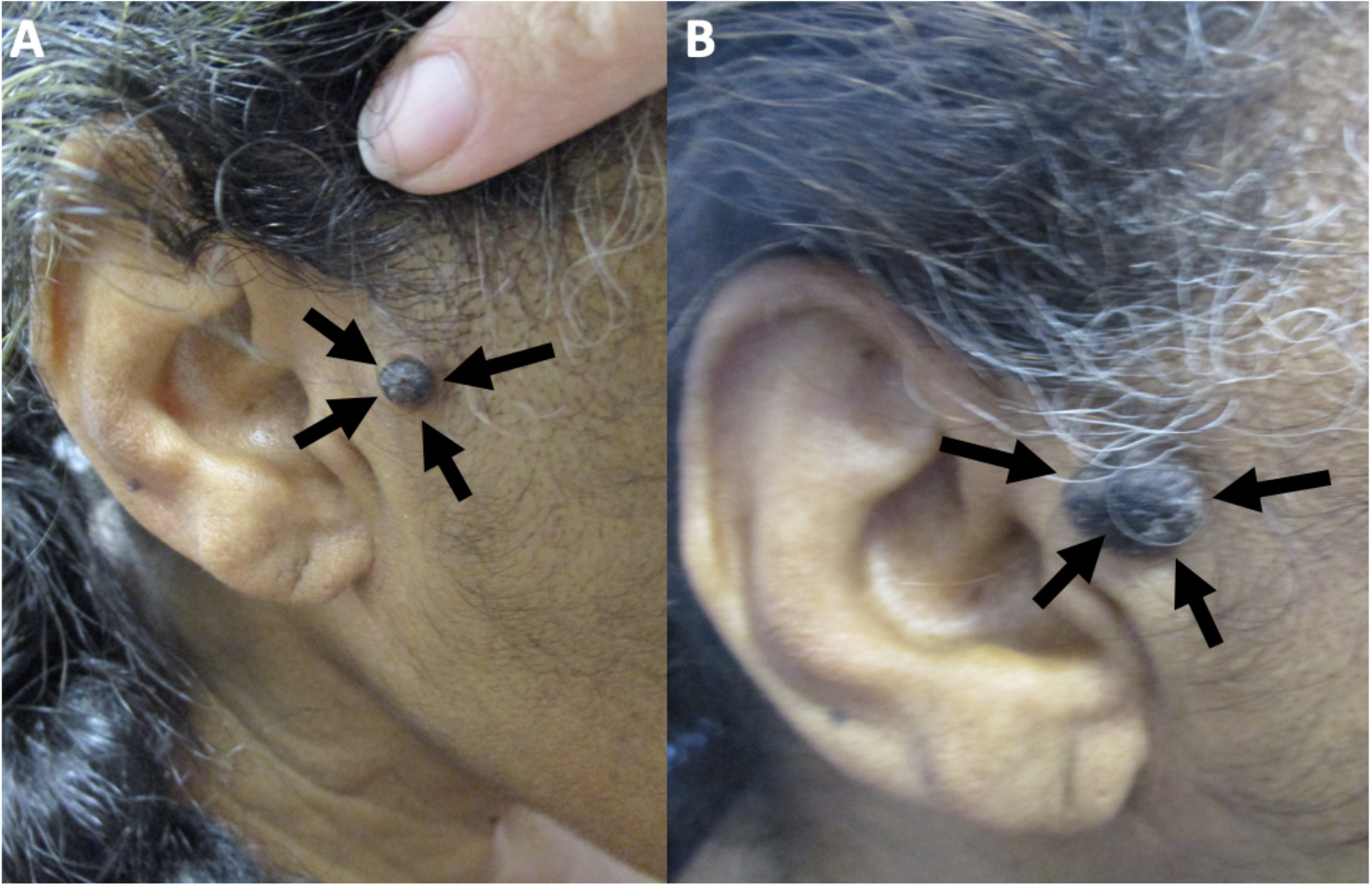 Figure 1. Clinical presentation of melanoacanthoma on the right preauricular area of a 65-year- old woman.  Clinical presentation of the initial (A) and recurrent (B) melanoacanthoma (black arrows) on the right preauricular area.  The tumor initially presented as a 2 x 1 cm black plaque (A).  The lesion not only persisted but also increased in size, morphologically mimicking a melanoma (B).