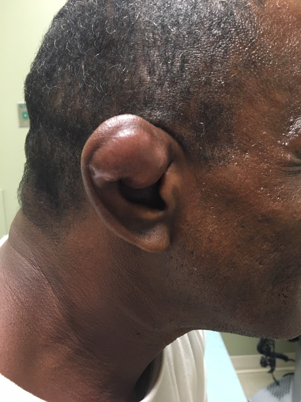 Cauliflower ear - severe