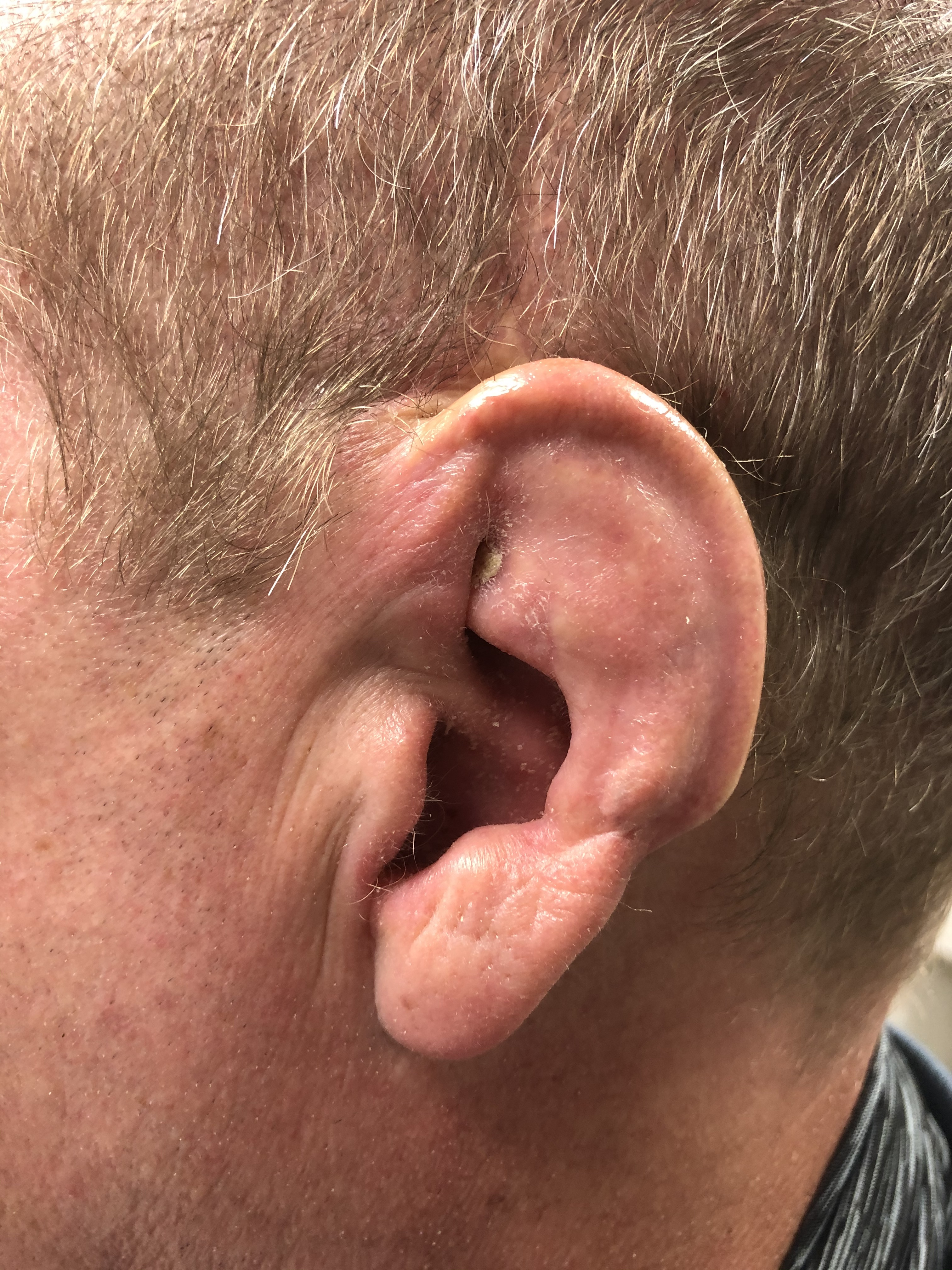 Cauliflower ear - mild