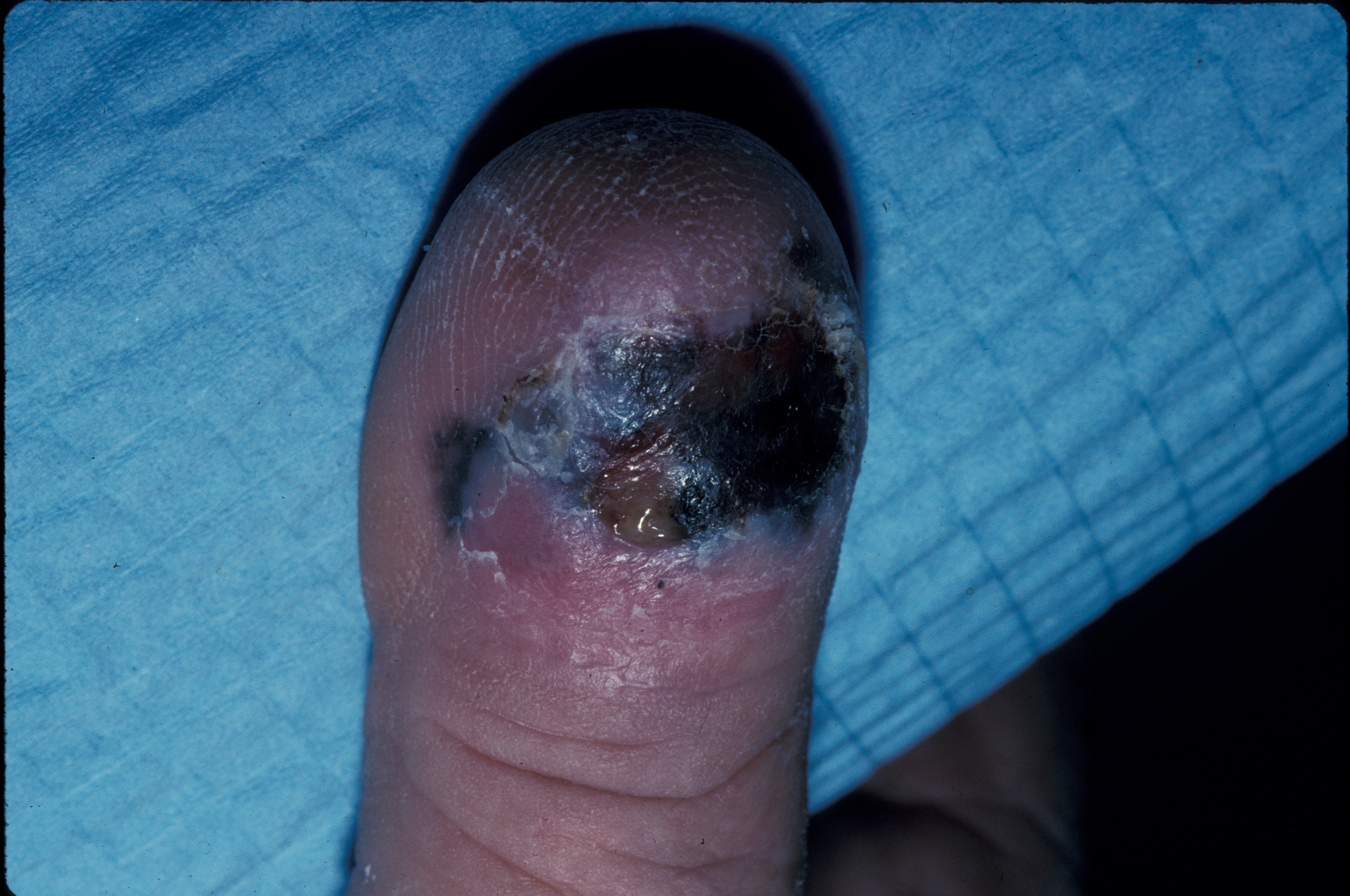 Clinical photo of an ulcerated acral lentiginous melanoma on the dorsal aspect of a toe.