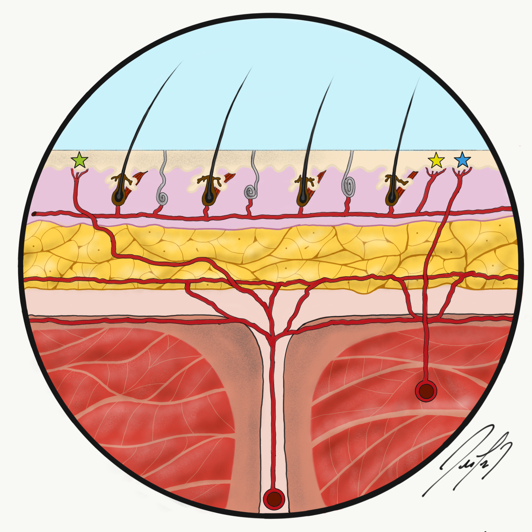 Figure 1: Green star stands for a septocutaneous perforator. Yellow star for a direct cutaneous perforator. Blue star for a musculocutaneous perforator.