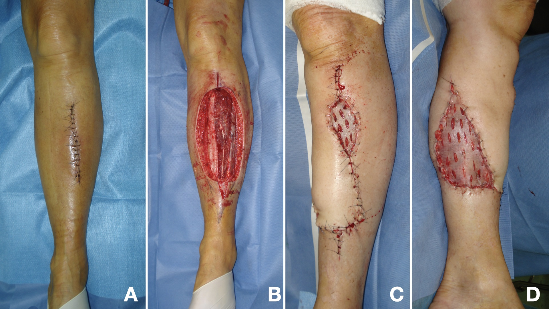 Figure 2. A) 65 years-old woman with an unplanned incomplete sarcoma excision of the leg. B) Wide resection. C and D) Medial Fasciocutaneous flap covering the proximal and middle third of the exposed tibia.