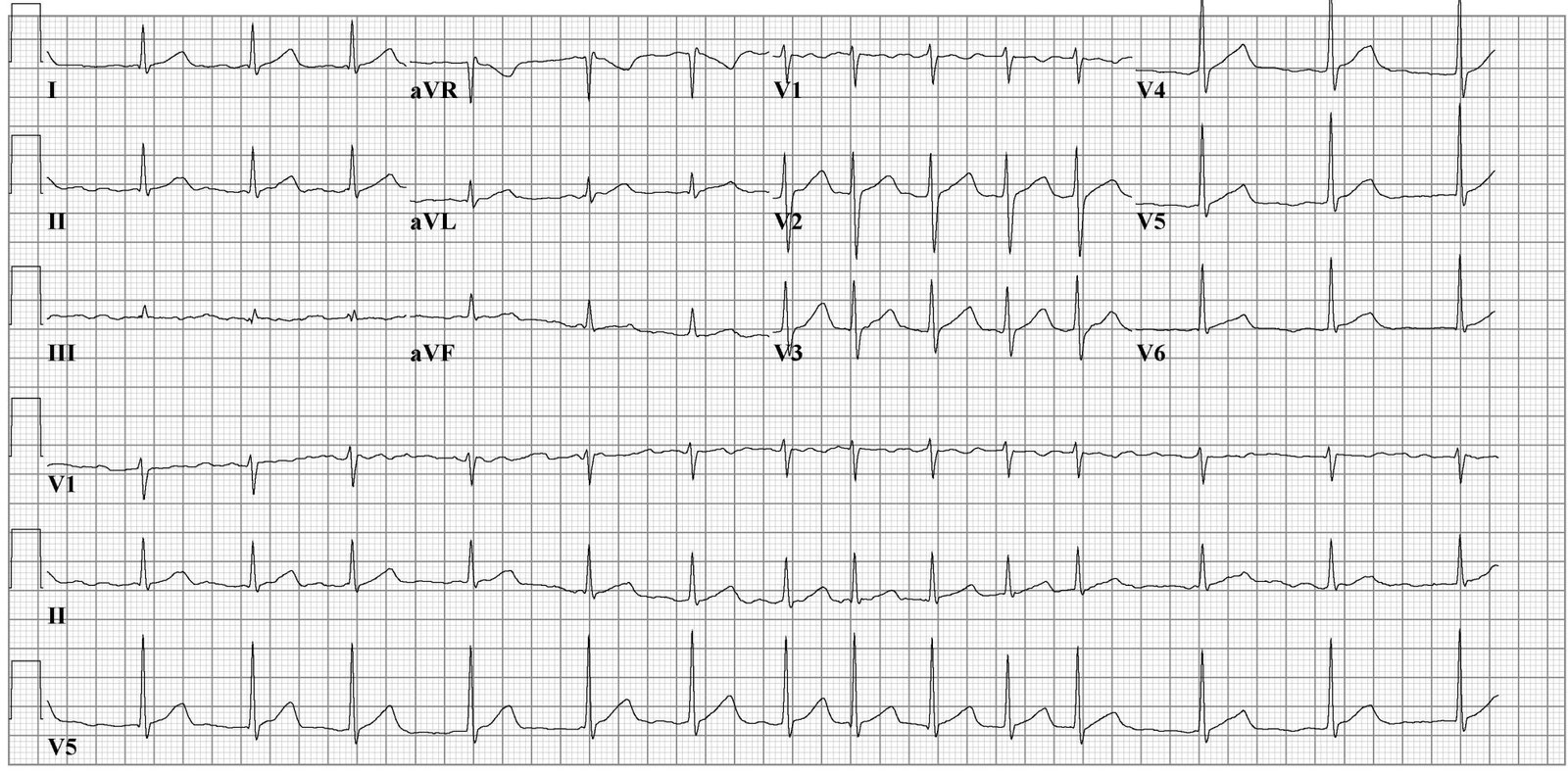 ECG for an Atrial fibrillation's case.