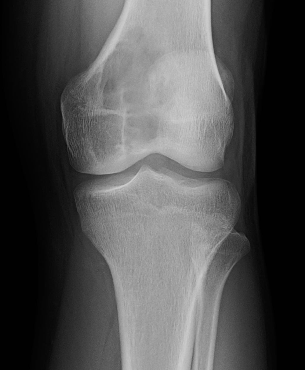 Radiographic image of a lytic lesion primarily centered at the epiphysis.