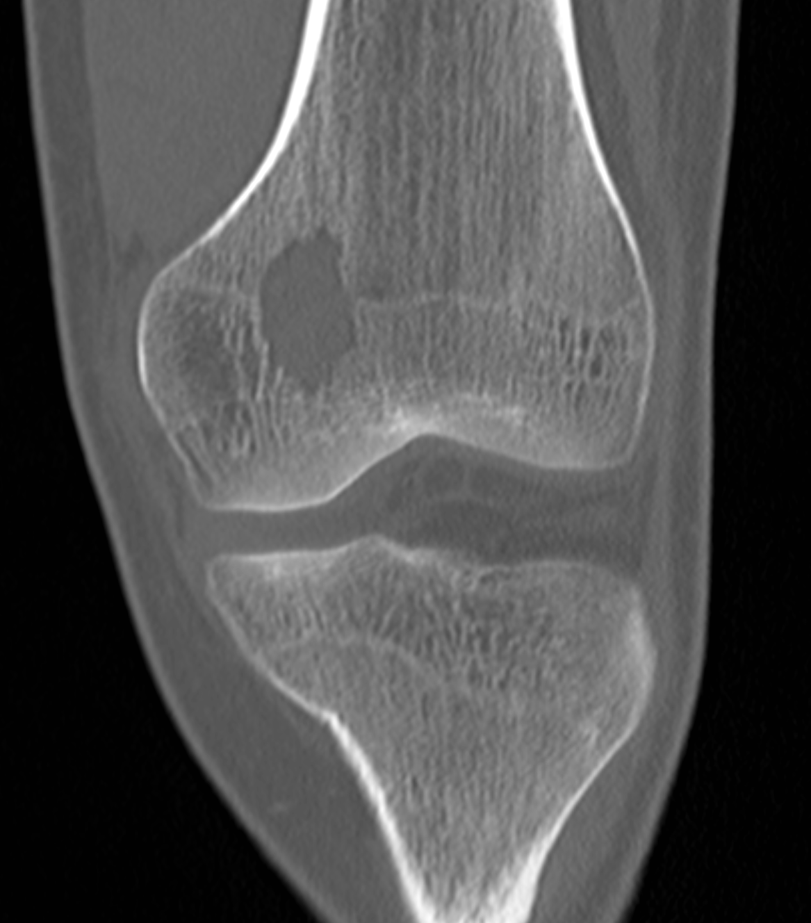 Coronal CT demonstrates a lytic lesion within the physis/epiphysis of the distal femur.