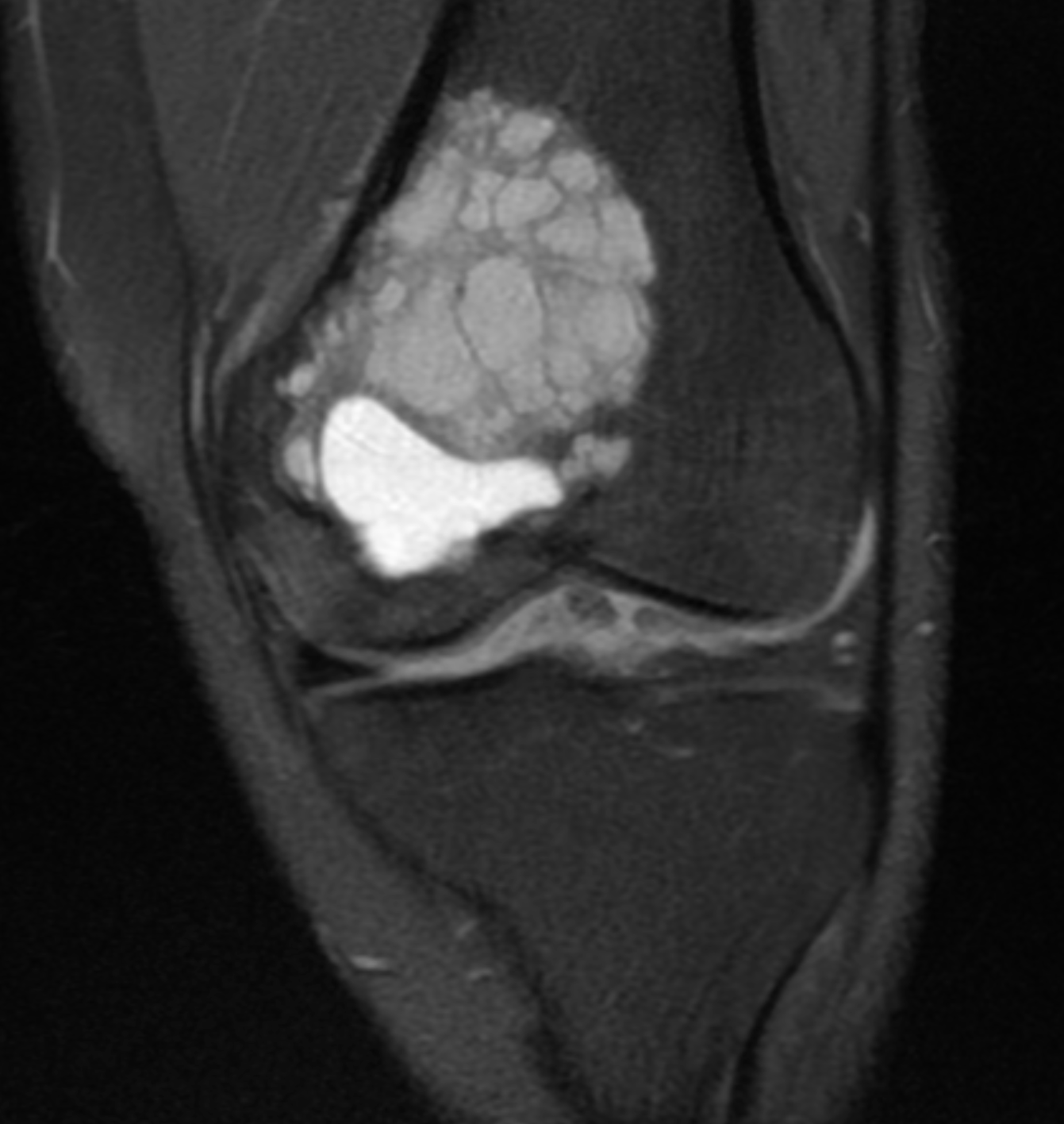 Coronal T2/STIR image of the left knee.