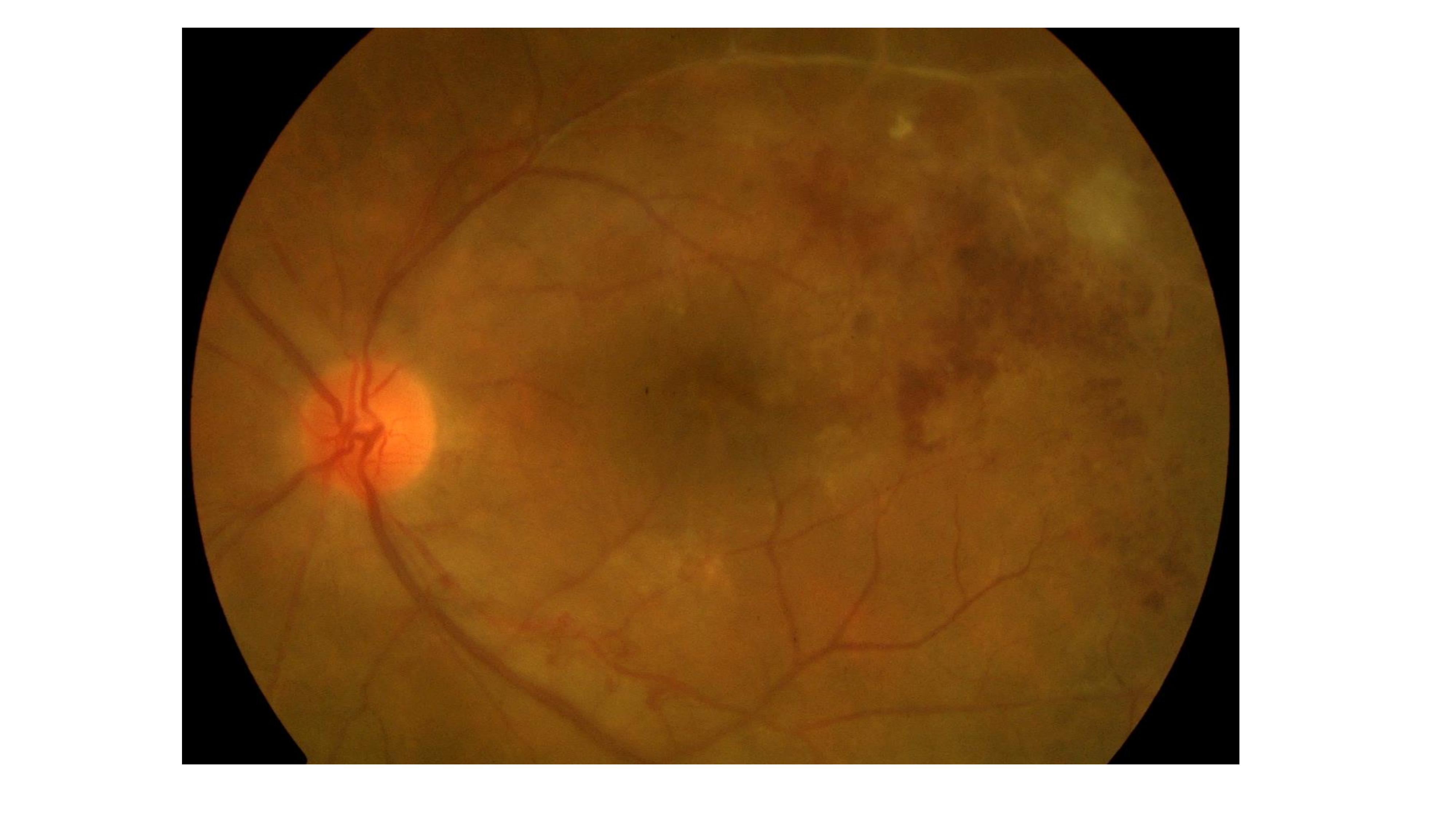 TB delayed hypersensitivity uveitis (Eales' disease) presenting with hemorrhagic ischemic vascular occlusion. Note the retinal hemorrhages and the vascular obliteration and sheathing temporal to the macula.