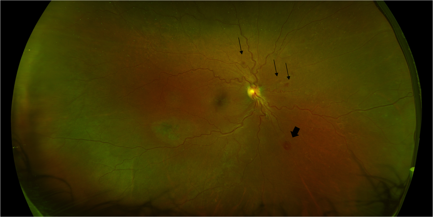 Retinal photograph of a patient with candidemia showing multiple retinal hemorrhages (arrows) and a Roth spot (arrow-head).