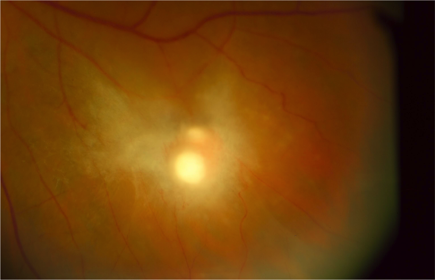Healing chorioretinal Candida lesion with scarring and retinal traction