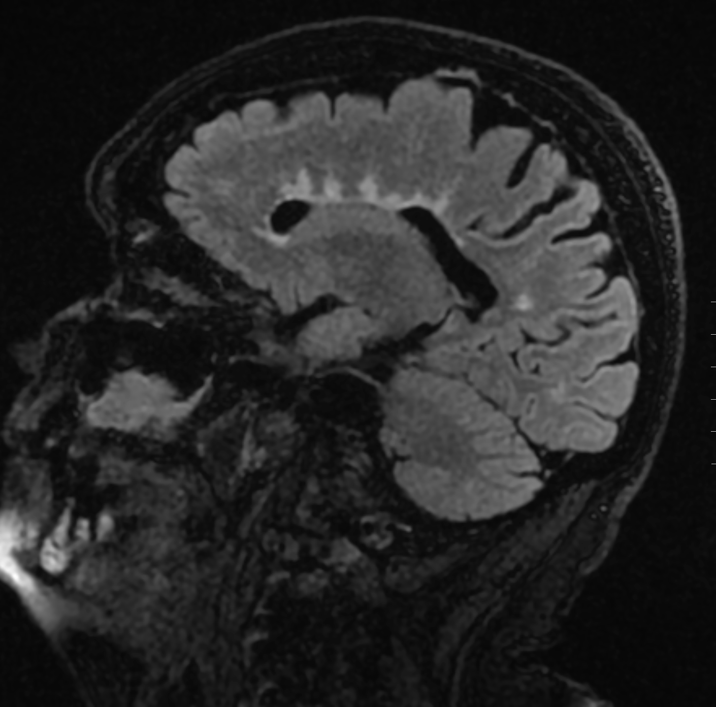 "Multiple sclerosis: linear hyperintense lesions on a saggital AXIAL sequence. These lesions are arranged perpendicular to the left lateral ventricle(""Dawson's fingers"")."
