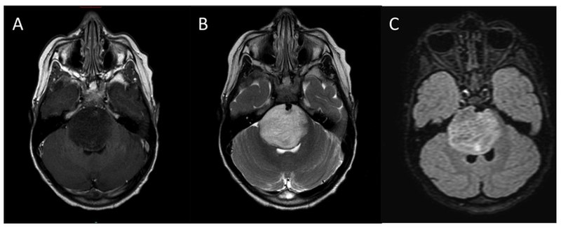Typical MRI appearance of diffuse intrinsic pontine glioma (DIPG). (A) T1-weighted post contrast, (B) T2-weighted, (C) FLAIR.
