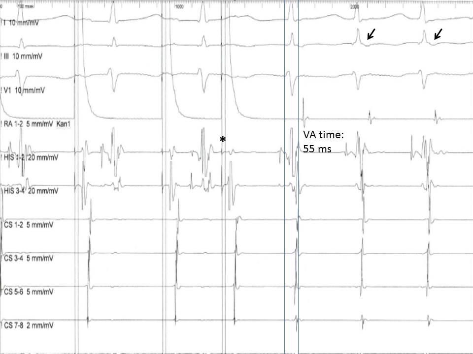 Figure 5.  Induction of an atrioventricular nodal reentry tachycardia (AVNRT) with a premature atrial extra stimulus (asterisk).  Note the short VA time (<60 ms) in the His bundle recording and the retrograde P waves in the ECG leads (arrows)