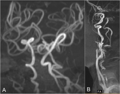 Fig 2 (MR angiogram) showing tortuous cerebral blood vessels