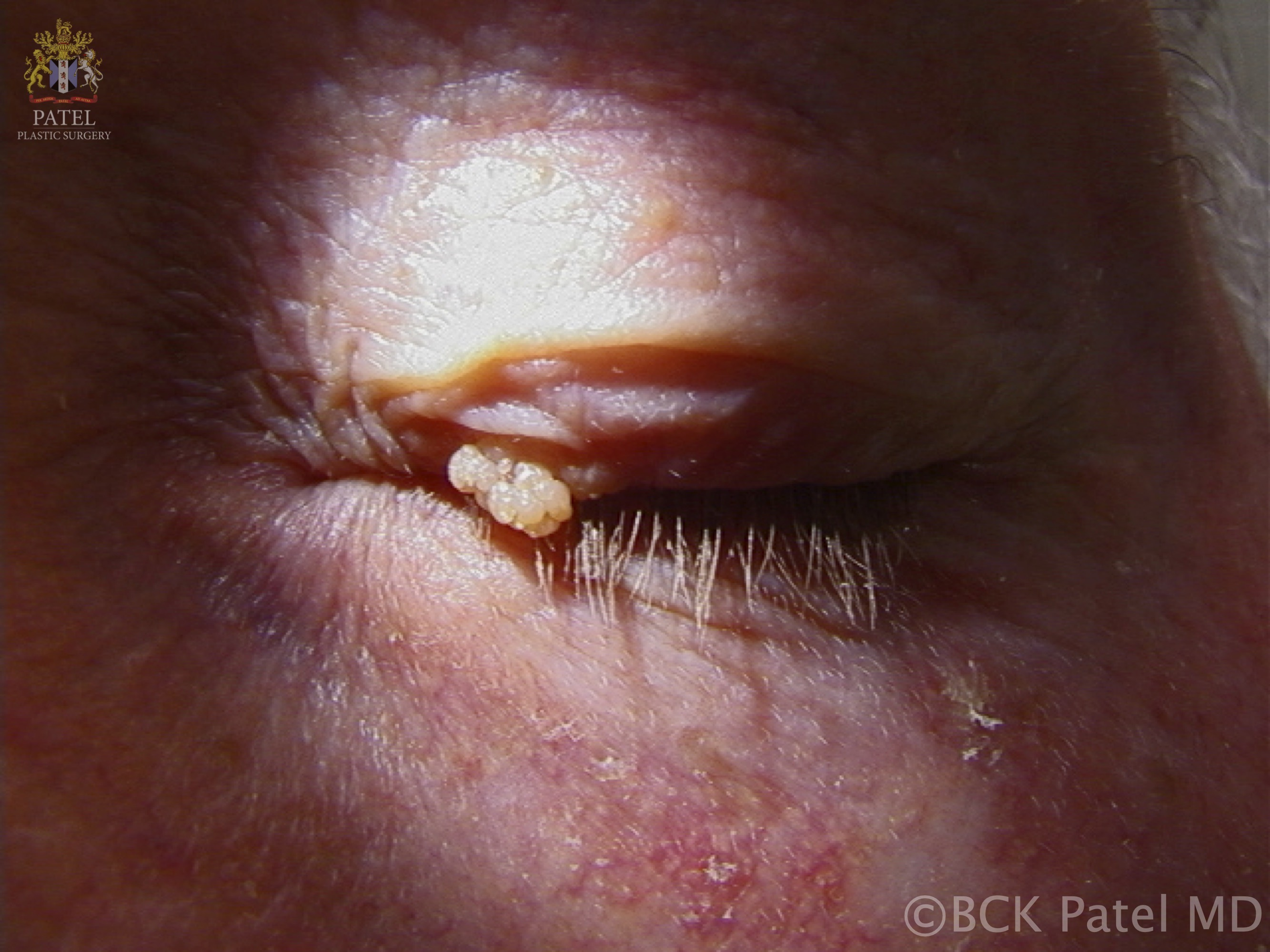 Viral papilloma: caused by human papilloma virus. The growths tend to be pedunculated and irregular and may shed. On eyelids and eyelid margins, shedding may result in other lesions. They are usually skin-colored and if they grow near the lacrimal puncta, they can grow into the canaliculus and result in an inverted papilloma with growth down the nasolacrimal system