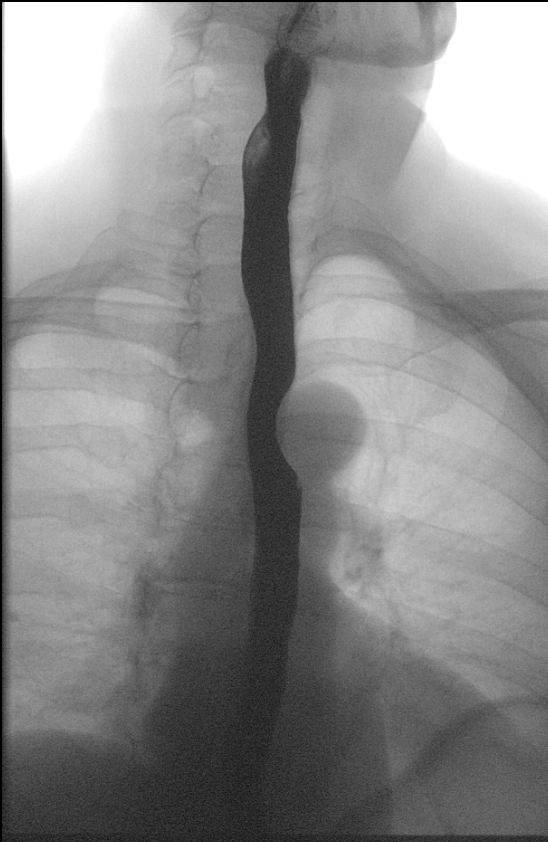 Single frontal image taken during a barium swallow exam demonstrating contrast in the esophagus.