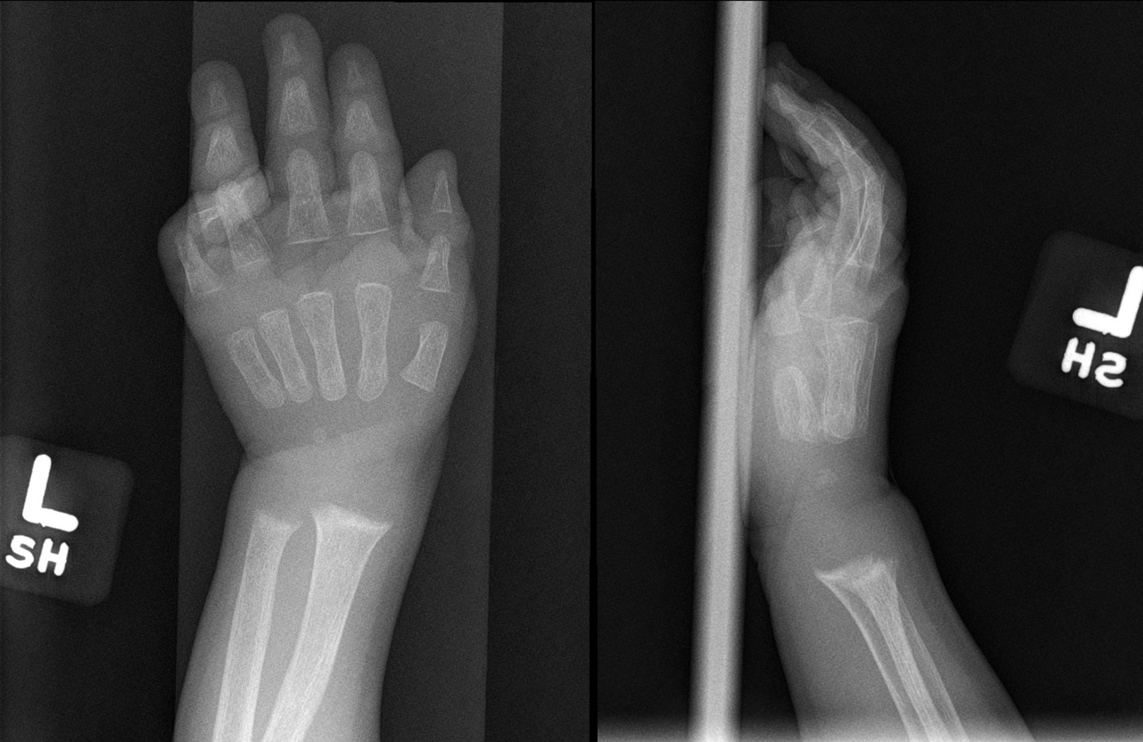 Radiograph of the left wrist (anteroposterior and lateral views) showing metaphyseal widening and irregularity of the distal radius and ulna indicative of rickets