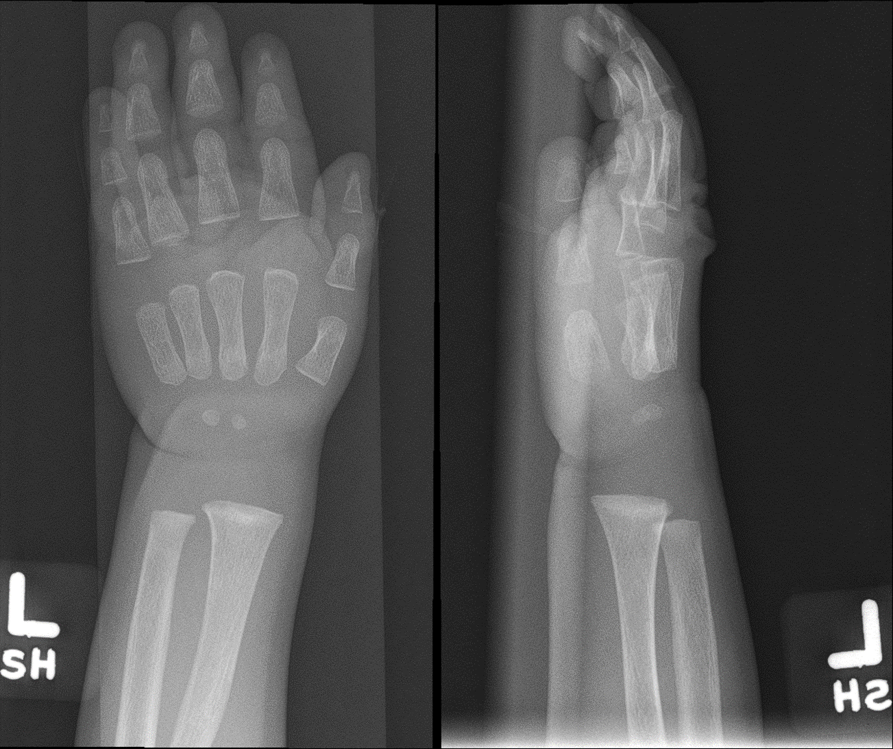 Radiograph of the left wrist (anteroposterior and lateral views) taken three months later showing improved density and appearance of the distal metaphysis after initiation of treatment for rickets. Improved mineralization of the bones also seen.