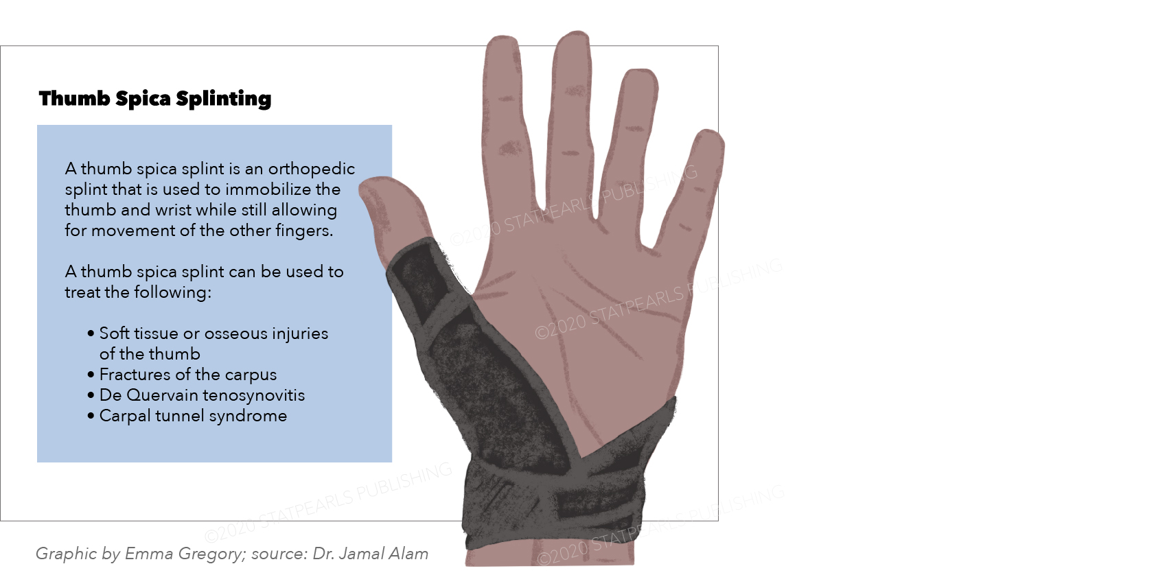 Thumb Splint graphic