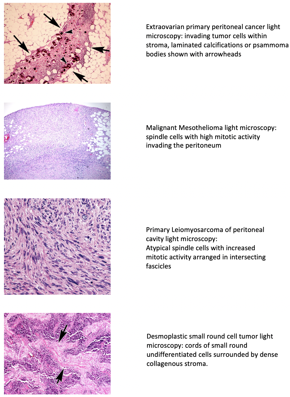 peritoneal cancer pathophysiology)