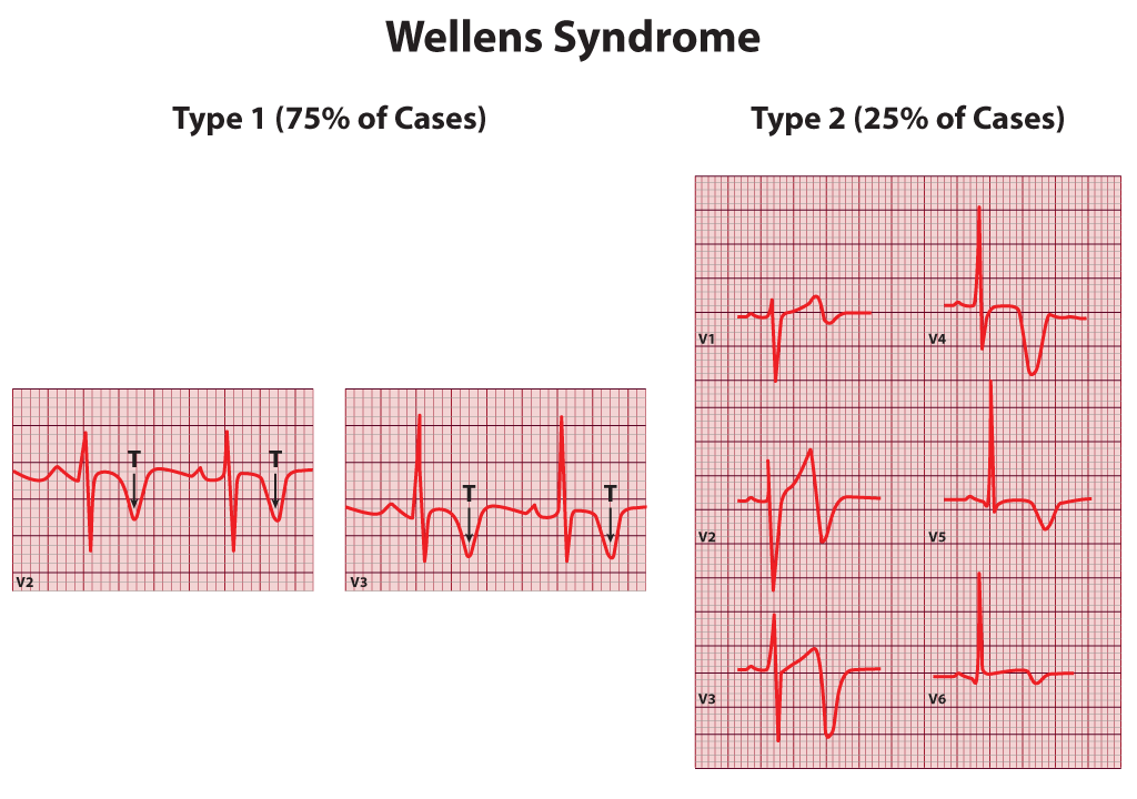 Wellens Syndrome, Type 1, Type 2