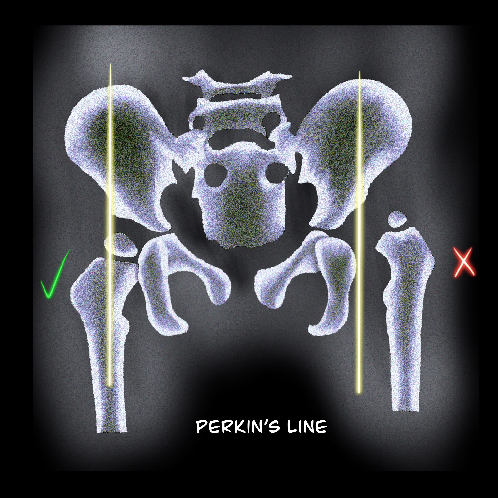 Figure 2: Perkin´s line. The femoral head should be medial to this line.