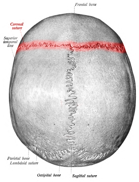 Coronal Suture lined as Red