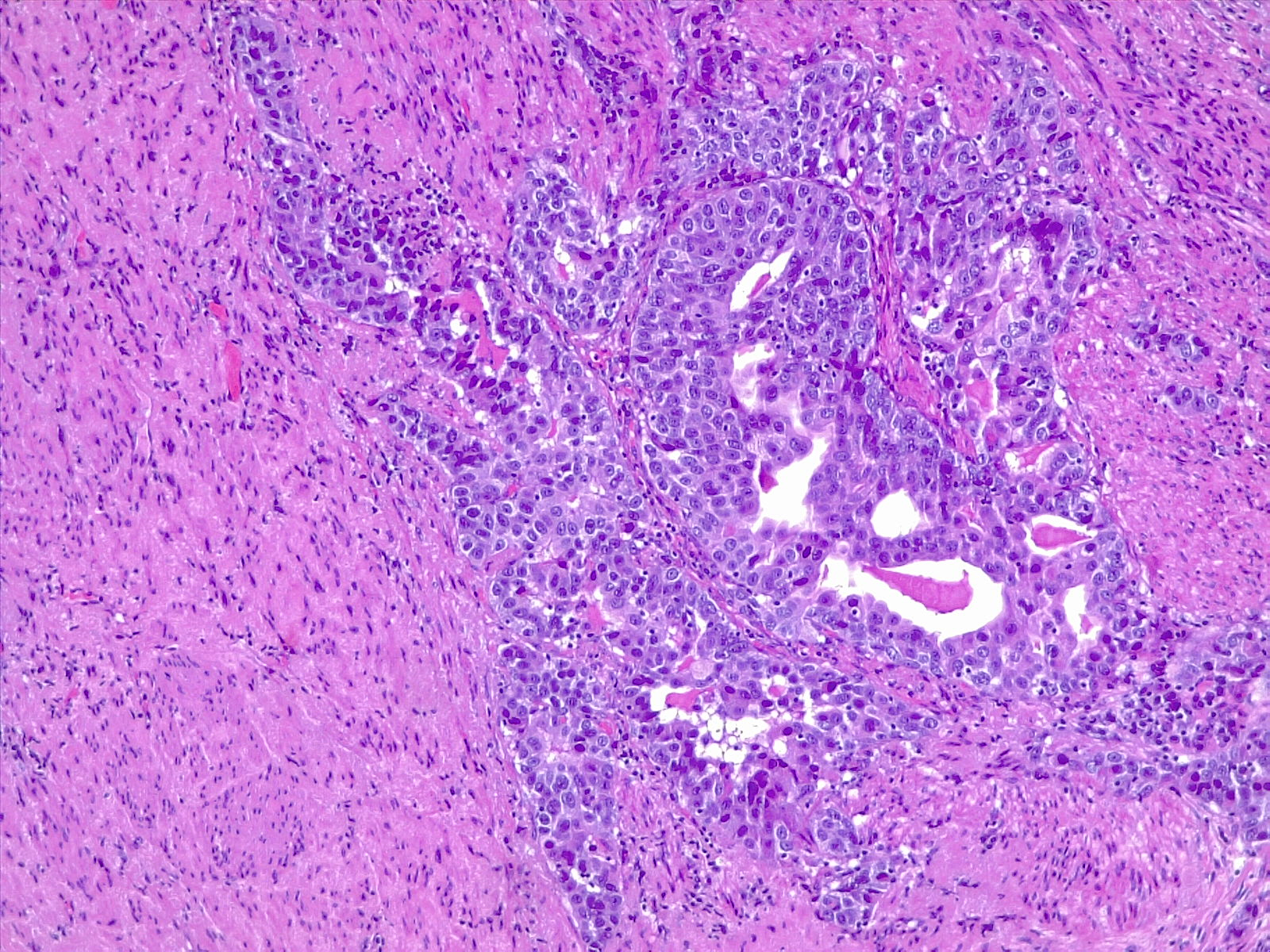 Urothelial carcinoma, bladder's muscularis propria (detrusor) invasion. Muscle-invasive bladder cancer pT2. 4x H/E.