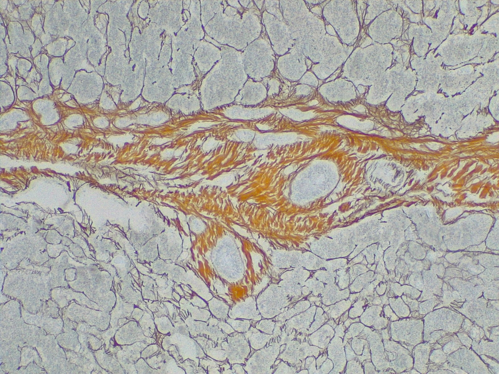 Cirrhosis, portal space in fibrous septa. Reticulin stain 4x