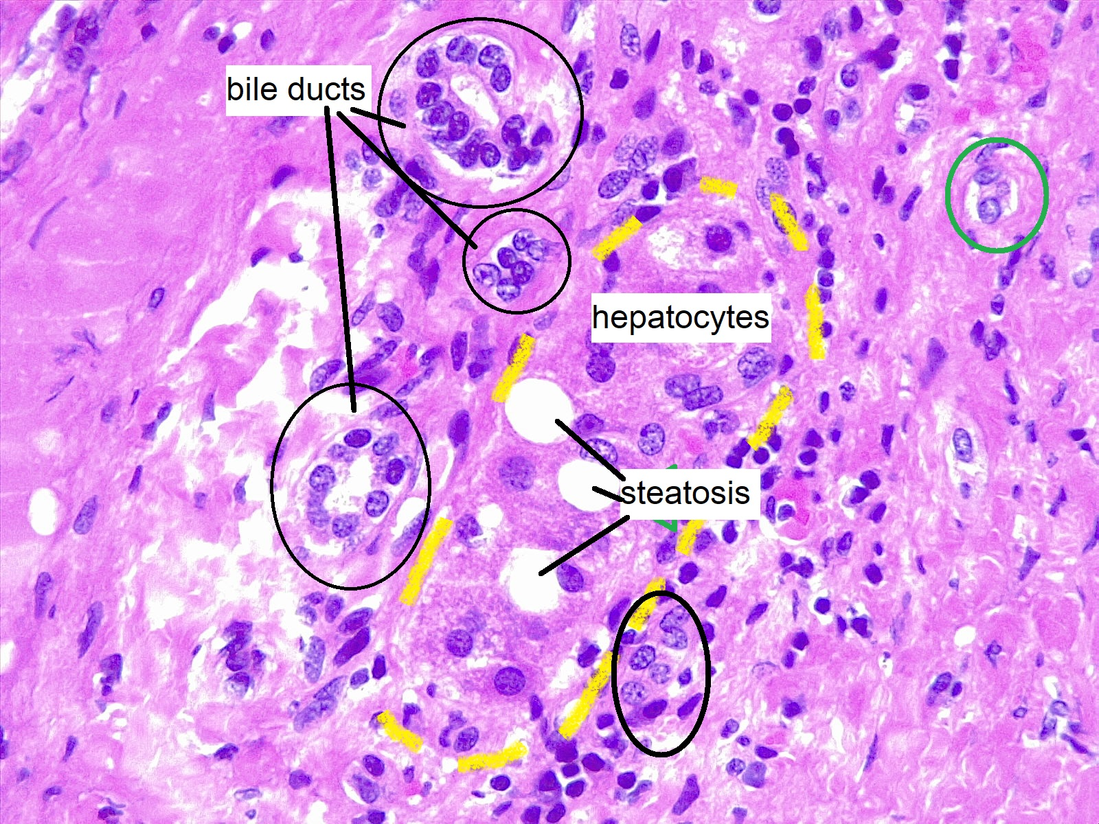 Liver biopsy, hepatic steatosis. In this field a group of hepatocytes (yellow dashes) is trapped in an altered portal tract, due to long-standing hepatitis. Bile ducts are fragmented and multiple. Most of the small cells surrounding the portal tract are lymphocytes.