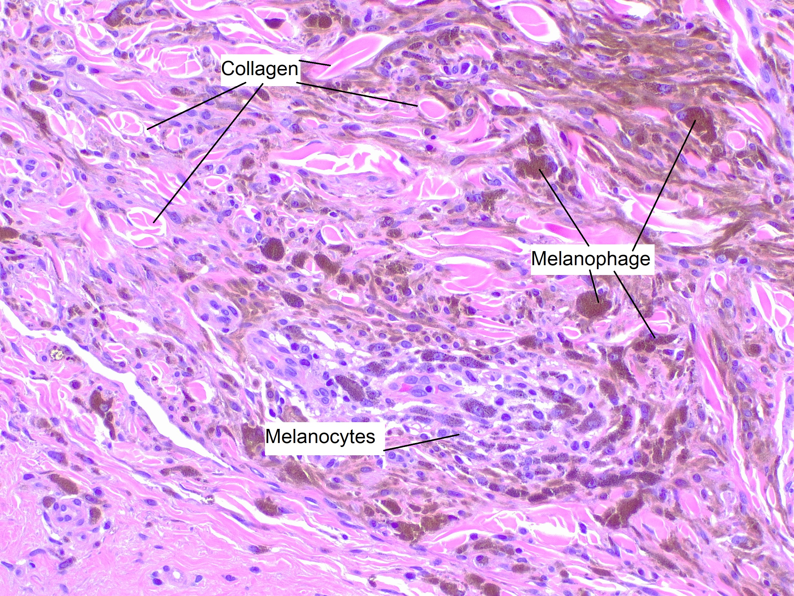 Blue nevus, H/E 20x. Spindle-shaped melanocytes without nuclear atypia or mitoses, deeply pigmented and surrounded by pigment-rich melanophages and collagen bundles.
