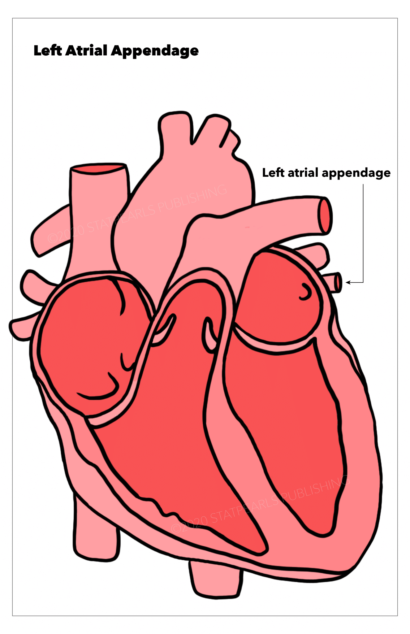 Left atrial appendage, heart