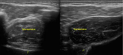 Ultrasound imaging of the supraspinatus muscle in short axis with evidence of atrophy on left and normal comparison on right.