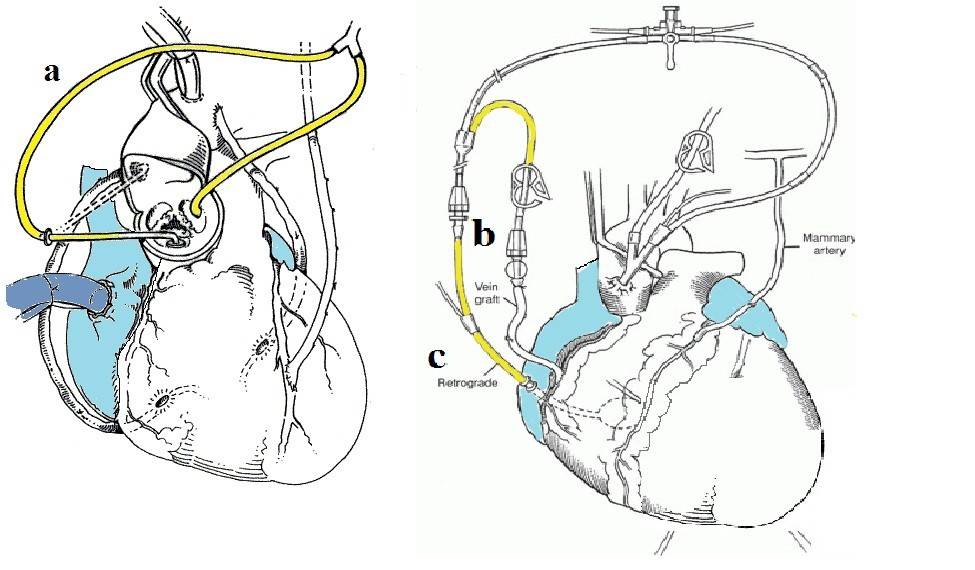 Figure 4: Direct coronary perfusion techniques
