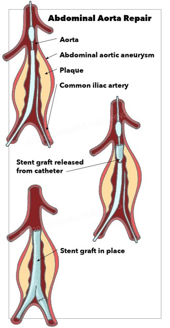 Abdominal Aorta Repair, aneurysm, common iliac artery, stent graft released from catheter