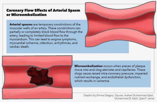 Coronary Flow Effects of Arterial Spasm or Microembolization, arterial spasm, blood flow, myocardium, plaque, clog, arterioles, capillaries, endothelial dysfunction, ischemia, angina, infarction, arrhythmia