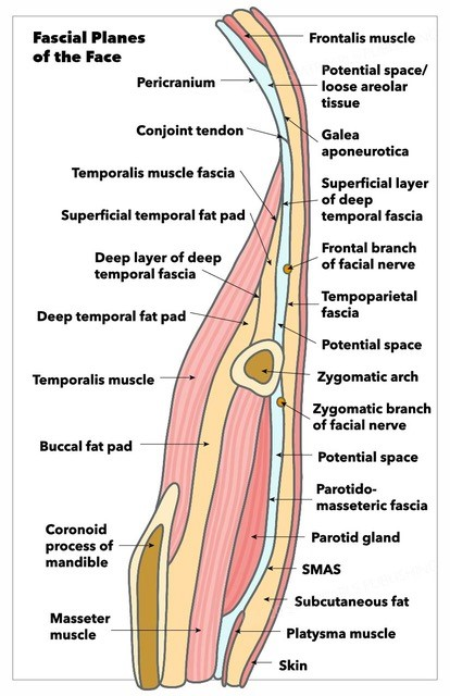 Fascial planes of the face, demonstrating continuity of frontalis muscle, galea aponeurotica, temporoparietal fascia, SMAS, and platysma, as well as location of facial nerve.