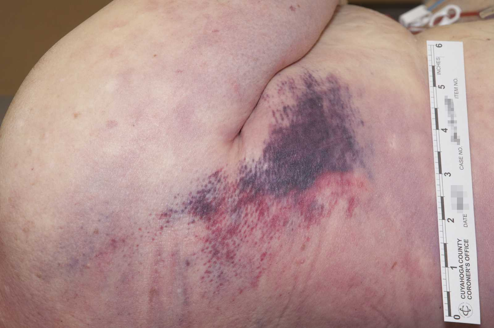 A recent red/purple contusion of the right lateral chest beneath the axilla.